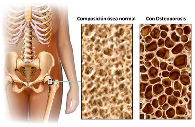 osteoporosis_porosidad_hueso