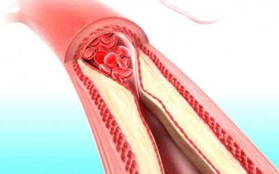 What it is cholesterol and how it affects your health