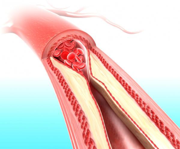 O que é o colesterol e como isso afeta a sua saúde